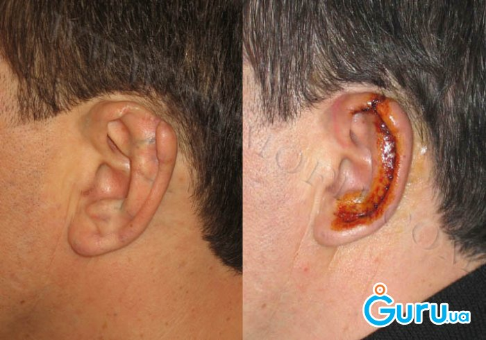 Как сделать чтобы не торчали уши без операции